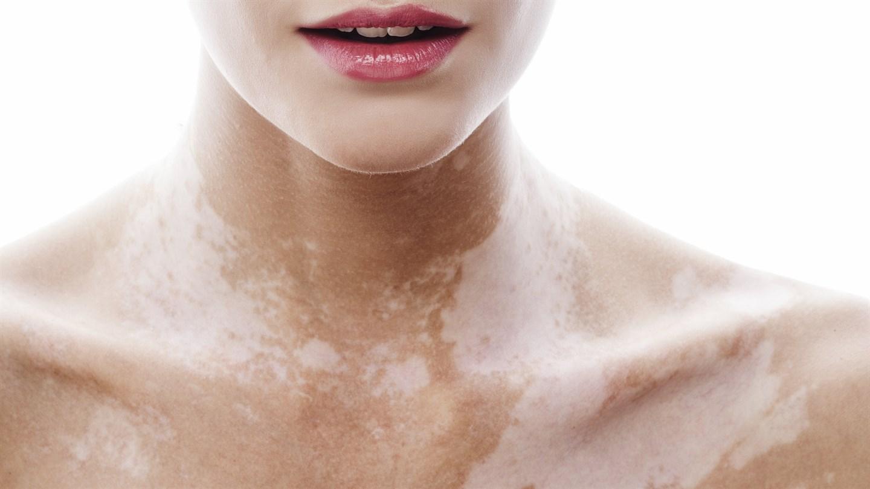 комплексное лечение аллергии на пыль