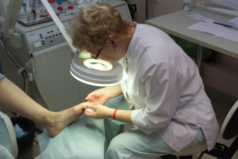 Грибок ногтей лечение в поликлинике